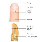fingernail medical vector illustration, english description poster