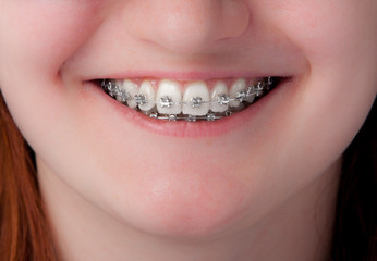 dental care concept. Teeth with braces