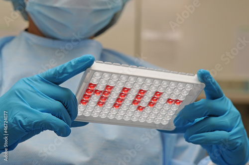 Microplate for ELISA with HIV abbreviation
