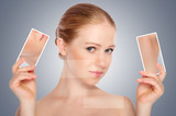 concept skincare . Skin of beauty young woman with acne poster