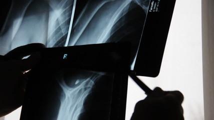 Arzt mit Röntgenbilder