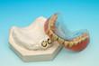 Zahnersatz Prothese Primärtei und Sekundärteil