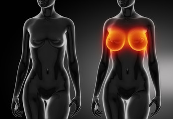 Female breast comparison after plastic surgery