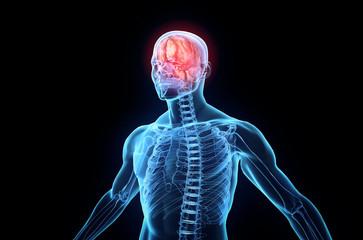 Head pain concept, 3D human anatomy