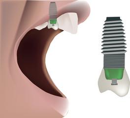 protesi dentale - dental prosthesis