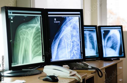 Radiography of human body parts