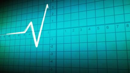 EKG wave