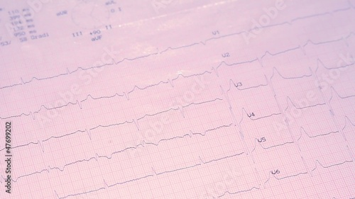 electrocardiogram and stethoscope