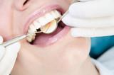 Dentist Examining - 47715266