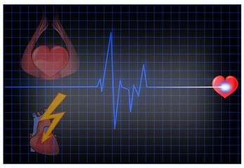 EKG mit Herz