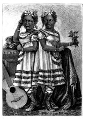 Siamese Sisters - 19th century