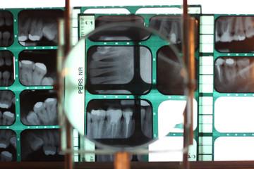 Examining patient teeth