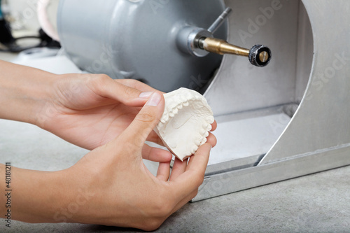 Dentist's Hands Holding Dental Plaster Mold