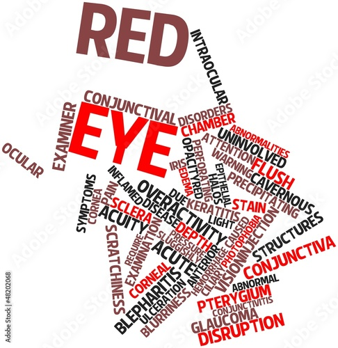 Word cloud for Red eye