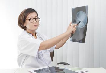 female doctor watching on head skull x-ray film
