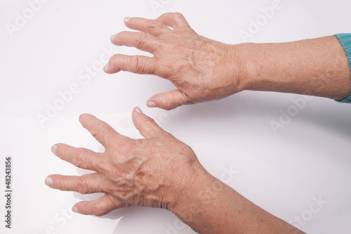Hands With Rheumatoid Arthritis
