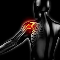 Schmerzen in der Schulter - 3D Grafik mit Röntgenbild