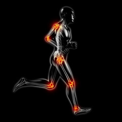 Bewegungschmerzen: Silhouette mit Skelett und Gelenkschmerzen