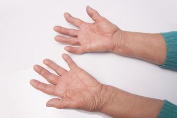 Hands With Rheumatoid Arthritis