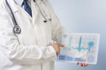 Doctor showing ecg