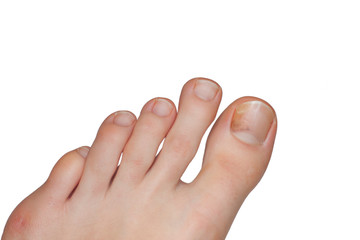Fuß mit Nagelpilz