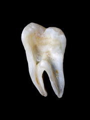 Longitudinal section from a human tooth