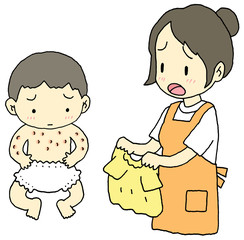 湿疹赤ちゃん