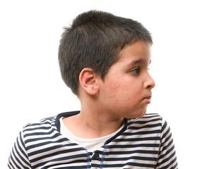 Little child suffering urticaria