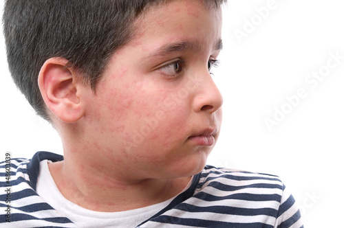 Child with skin rash