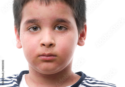 Child with urticaria