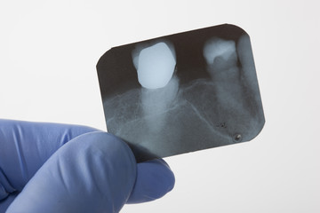 looking a x-ray of tooth