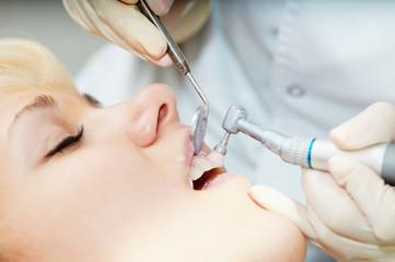 dentist healthcare teeth polishing work
