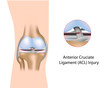 Anterior Cruciate Ligament injury, eps8