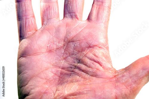 Handfläche links Krankheit