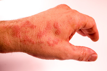 linke Hand erkrankt Ausschlag