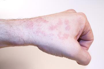 Hautkrankheit linke Hand Faust