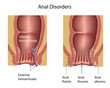 Anal disorders, eps8