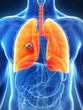 3d rendered illustration of the male lung - cancer