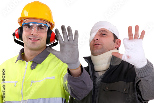 Injured tradesman comparing his hand to a healthy colleague