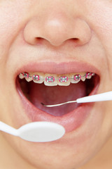 orthodontics,dental concept