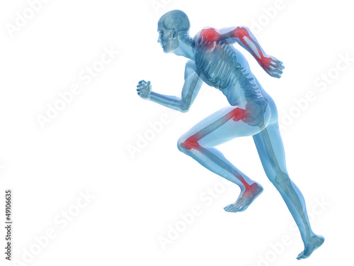 High resolution conceptual 3D human with inflammation