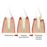 parodontitis vector illustration english 2 of 5