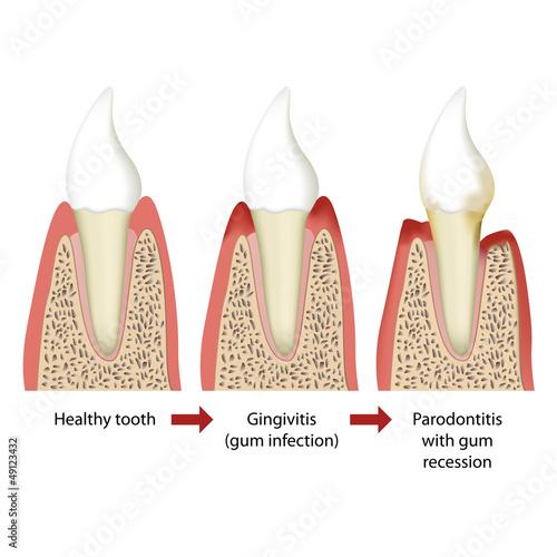 parodontitis vector illustration english 2 of 5 - 49123432