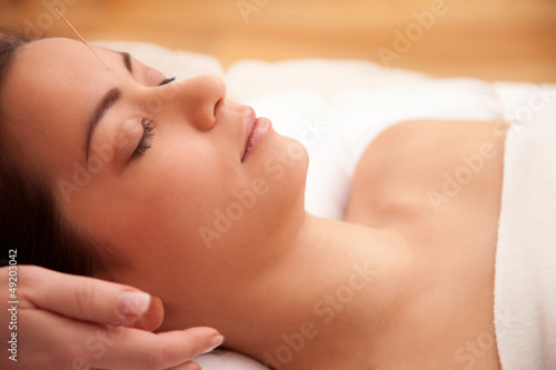 Acupuncture treatment in the head