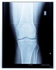 X-ray knee