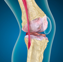 Osteoporosis of the knee joint.