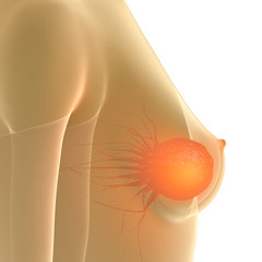 Breast Cancer - close up - 3D Render