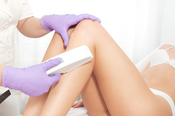 Laser epilation treatment