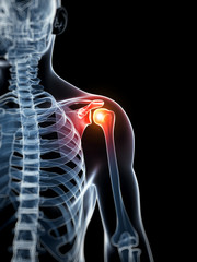3d rendered illustration - painful shoulder