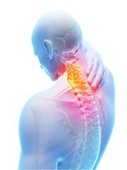 3d rendered illustration - painful neck